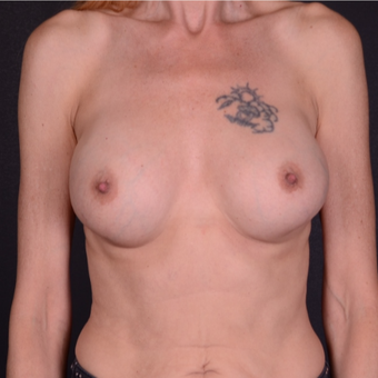 45-54 year old woman treated with Breast Implant Revision before 3738161