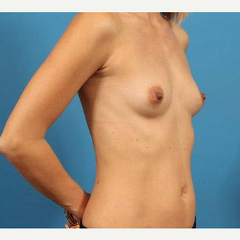 25-34 year old woman treated with Breast Implants before 3076299