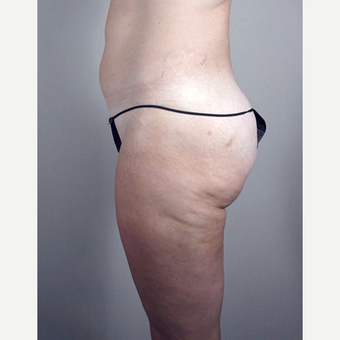 25-34 year old woman treated with Brazilian Butt Lift after 3213407