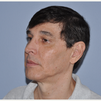 55-64 year old man treated with Facelift before 3603858