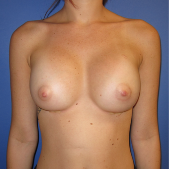 18-24 year old woman treated with Breast Augmentation (one week after surgery) after 3180531