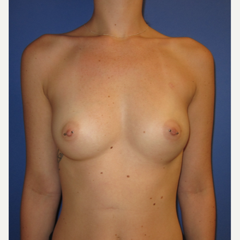 18-24 year old woman treated with Breast Augmentation (one week after surgery) before 3180531