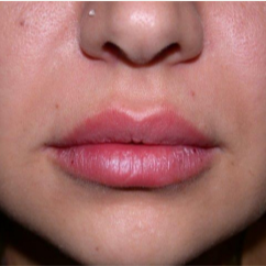 25 year old woman treated with Lip Augmentation after 2842422