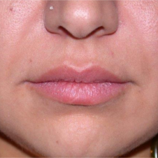 25 year old woman treated with Lip Augmentation before 2842422