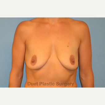 40 year old woman treated with Breast Lift with Implants before 3088786