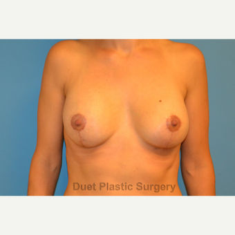 40 year old woman treated with Breast Lift with Implants after 3088786