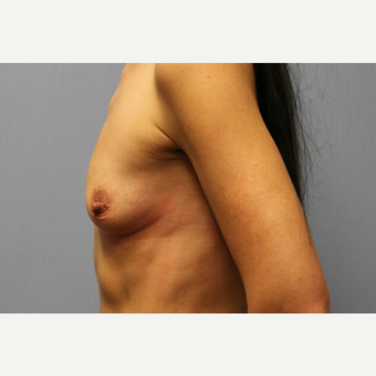 35-44 year old woman treated with Breast Augmentation before 3569997