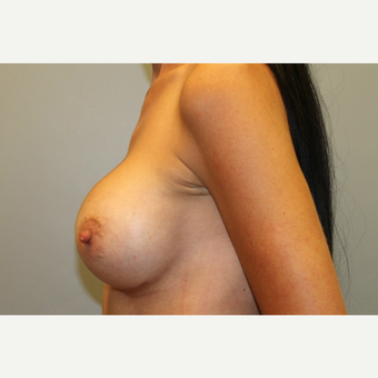 35-44 year old woman treated with Breast Augmentation after 3569997