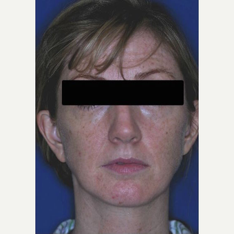 45-54 year old female treated with Revision Rhinoplasty before 3669945