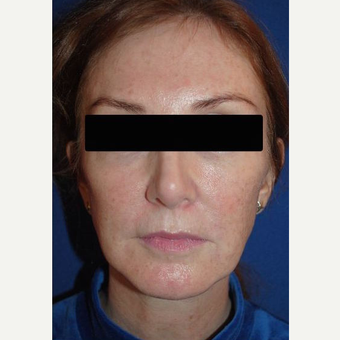 45-54 year old female treated with Revision Rhinoplasty after 3669945