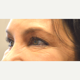 55 year old female, with saggy eyelids, underwent upper + lower blepharoplasty & lateral brow lift. before 3789596