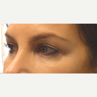55 year old female, with saggy eyelids, underwent upper + lower blepharoplasty & lateral brow lift. after 3789596