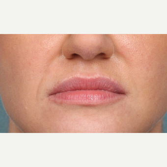 35-44 year old woman treated with Juvederm after 3838976