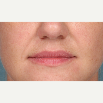 35-44 year old woman treated with Juvederm before 3838976