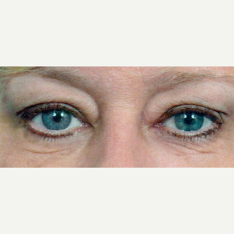 55-64 year old woman treated with Eyelid Surgery before 3441345