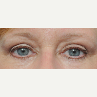 55-64 year old woman treated with Eyelid Surgery after 3441345