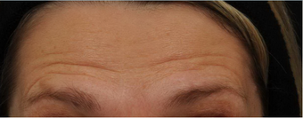 Before and After BOTOX® Cosmetic  - frown lines, forehead lines, crow's feet before 631340