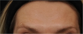 Before and After BOTOX® Cosmetic  - frown lines, forehead lines, crow's feet after 631340
