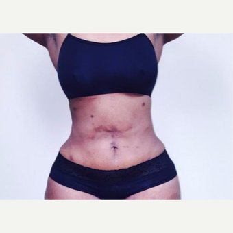 35-44 year old woman treated with Laser Liposuction after 3764185