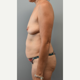45-54 year old woman treated with Mommy Makeover before 3294082