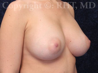 Breast Augmentation with submuscular cohesive silicone gel implants