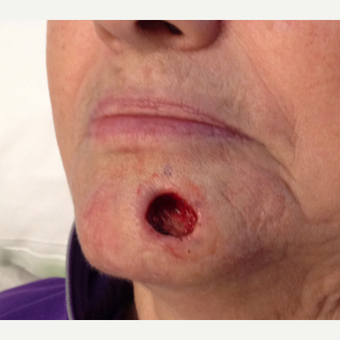 65-74 year old woman treated with Facial Reconstructive Surgery before 3520931