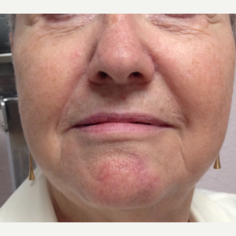 65-74 year old woman treated with Facial Reconstructive Surgery after 3520931