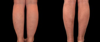 18-24 year old woman treated with Tumescent Liposuction before 2025435