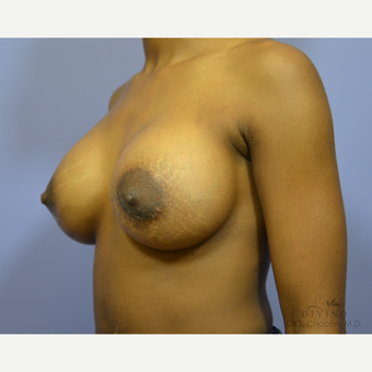 18-24 year old man treated with Breast Augmentation after 3419076