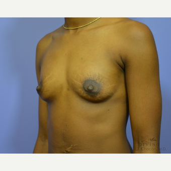 18-24 year old man treated with Breast Augmentation before 3419076