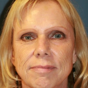 55-64 year old woman treated with Skin Rejuvenation before 2448905