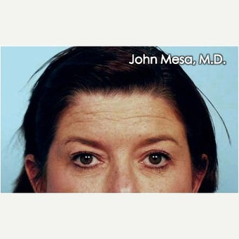 35-44 year old woman treated with Endoscopic Brow Lift