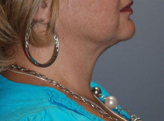 SmartLipo Neck, 55 year old female, 6 months post-op