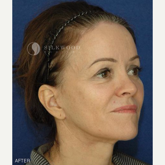 45-54 year old woman treated with Facelift, Rhinoplasty and Hairline Lowering after 2900479