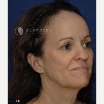 45-54 year old woman treated with Facelift, Rhinoplasty and Hairline Lowering before 2900479