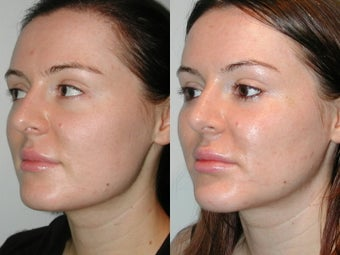 28 Year Old Female with Cheek and Chin Implants after 1077179