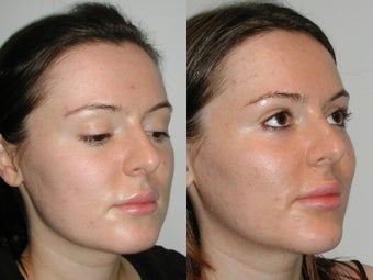 28 Year Old Female with Cheek and Chin Implants 1077179