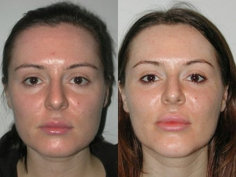 28 Year Old Female with Cheek and Chin Implants before 1077179