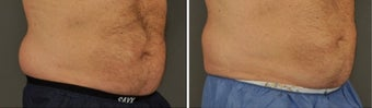 45-54 year old man treated with CoolSculpting before 3054908