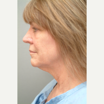 55-64 year old woman treated with Neck Lift before 3763434