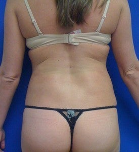 Laser Lipo after 333234
