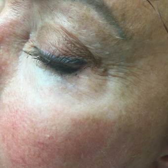 45-54 year old woman treated with Vein Treatment after 3079332