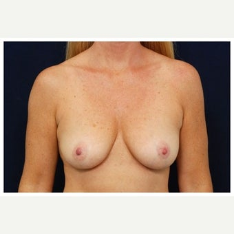 35-44 year old woman treated with Inspira Breast Implants before 1858376