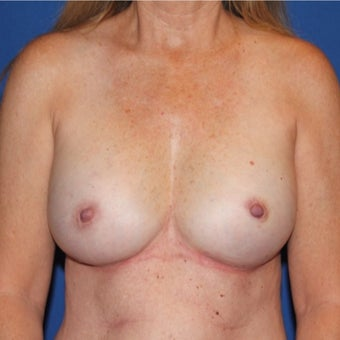 45-54 year old woman treated with Breast Reconstruction after 1982483