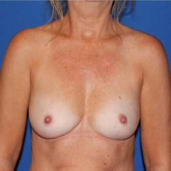 45-54 year old woman treated with Breast Reconstruction before 1982483