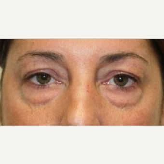 35-44 year old woman treated with Eyelid Surgery before 3006255