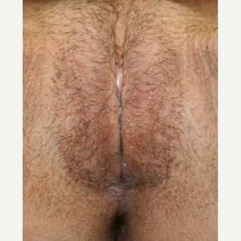 35-44 year old woman treated with Vaginal Rejuvenation after 2863794