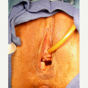 35-44 year old woman treated with Vaginal Rejuvenation before 2863794