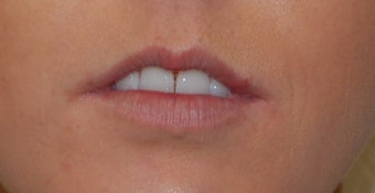 Alloderm Lip Implants before 1007064