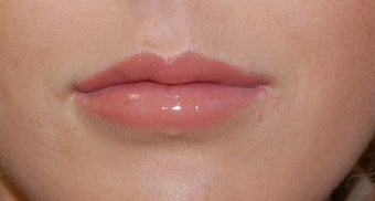 Alloderm Lip Implants after 1007064